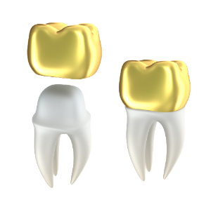 gold crowns (1)-239-999